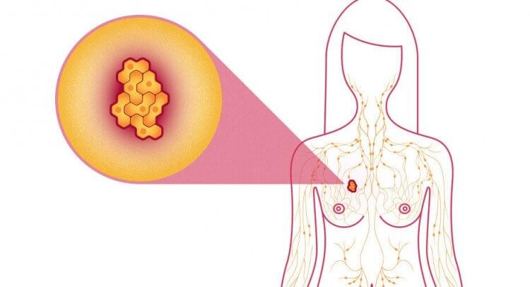 киста женской груди