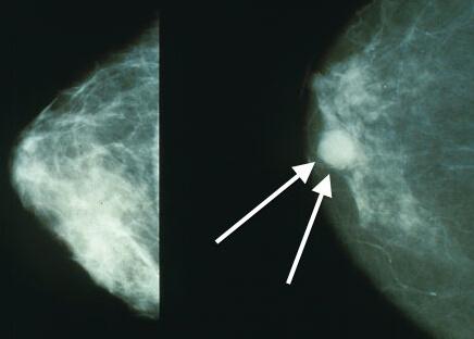 рак груди фото