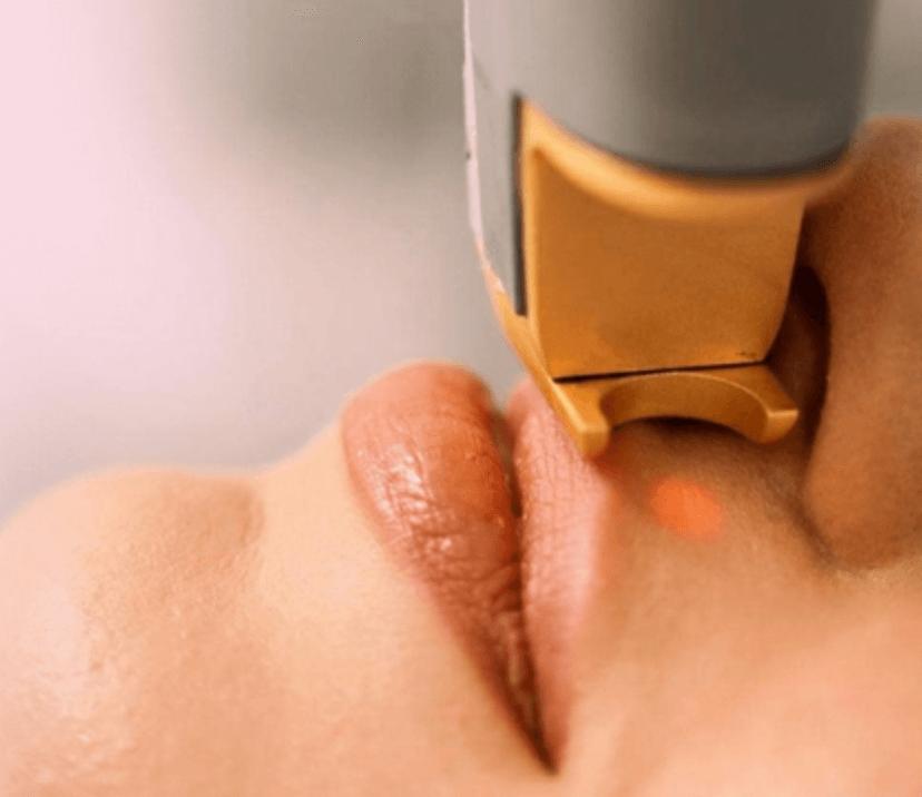 Что такое лазерное омоложение кожи